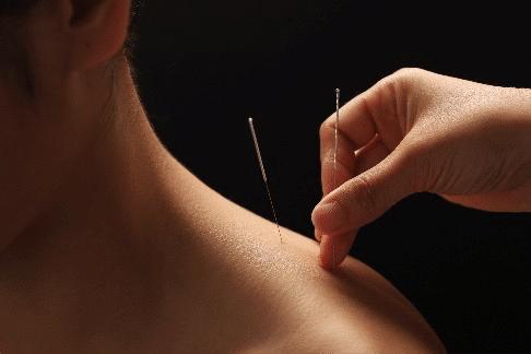 Bild von Akupunktur